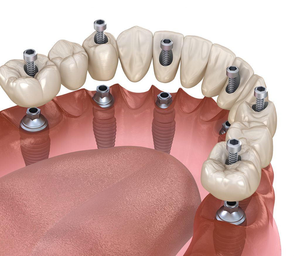 all-on6 dental implants