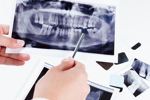 oral surgery 3d cone-beam ct scanner columbus georgia