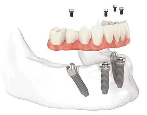 screw retained dentures columbus ga