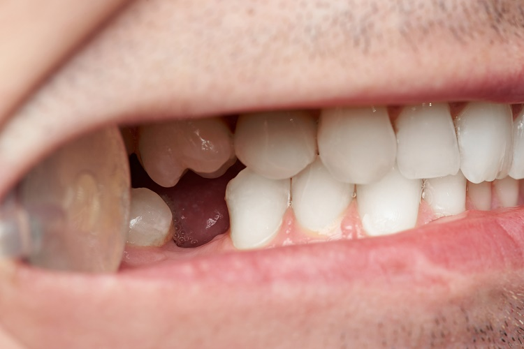Campbell Oral Surgery